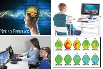Séance neurofeedback, des bienfaits assurés avec une technique issue des neurosciences